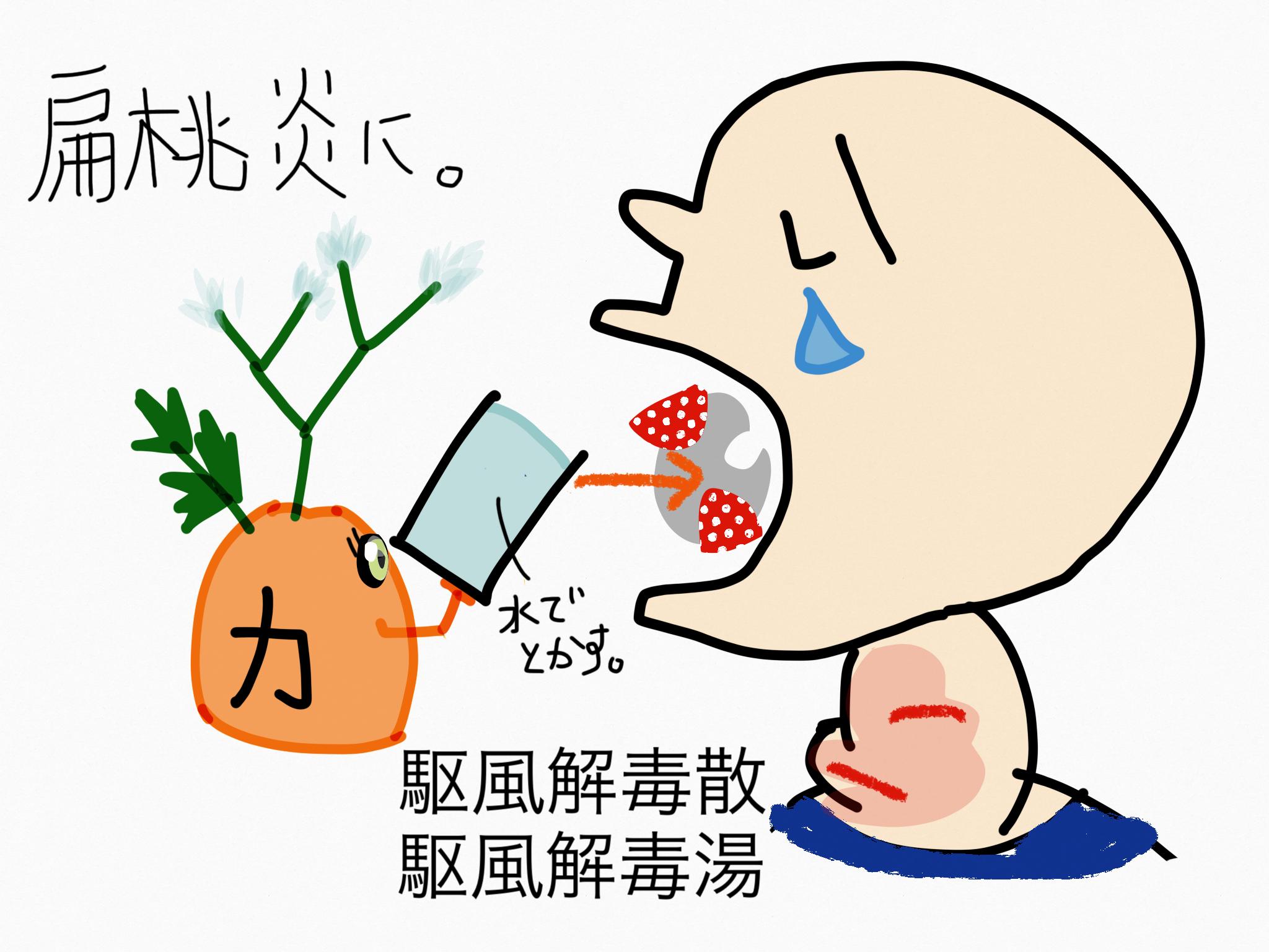 駆風解毒散(くふうげどくさん)/駆風解毒湯(くふうげどくとう)[のどの痛み]【漢方の覚え方】