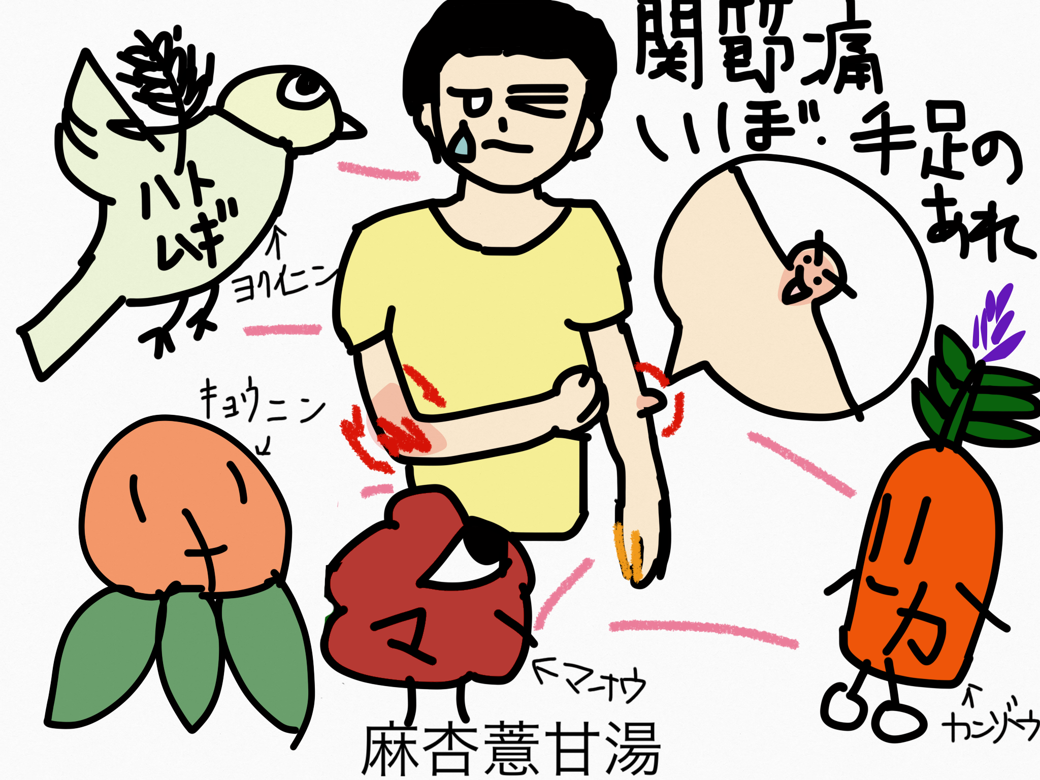 麻杏薏甘湯(まきょうよくかんとう)[鎮痛]【漢方の覚え方】