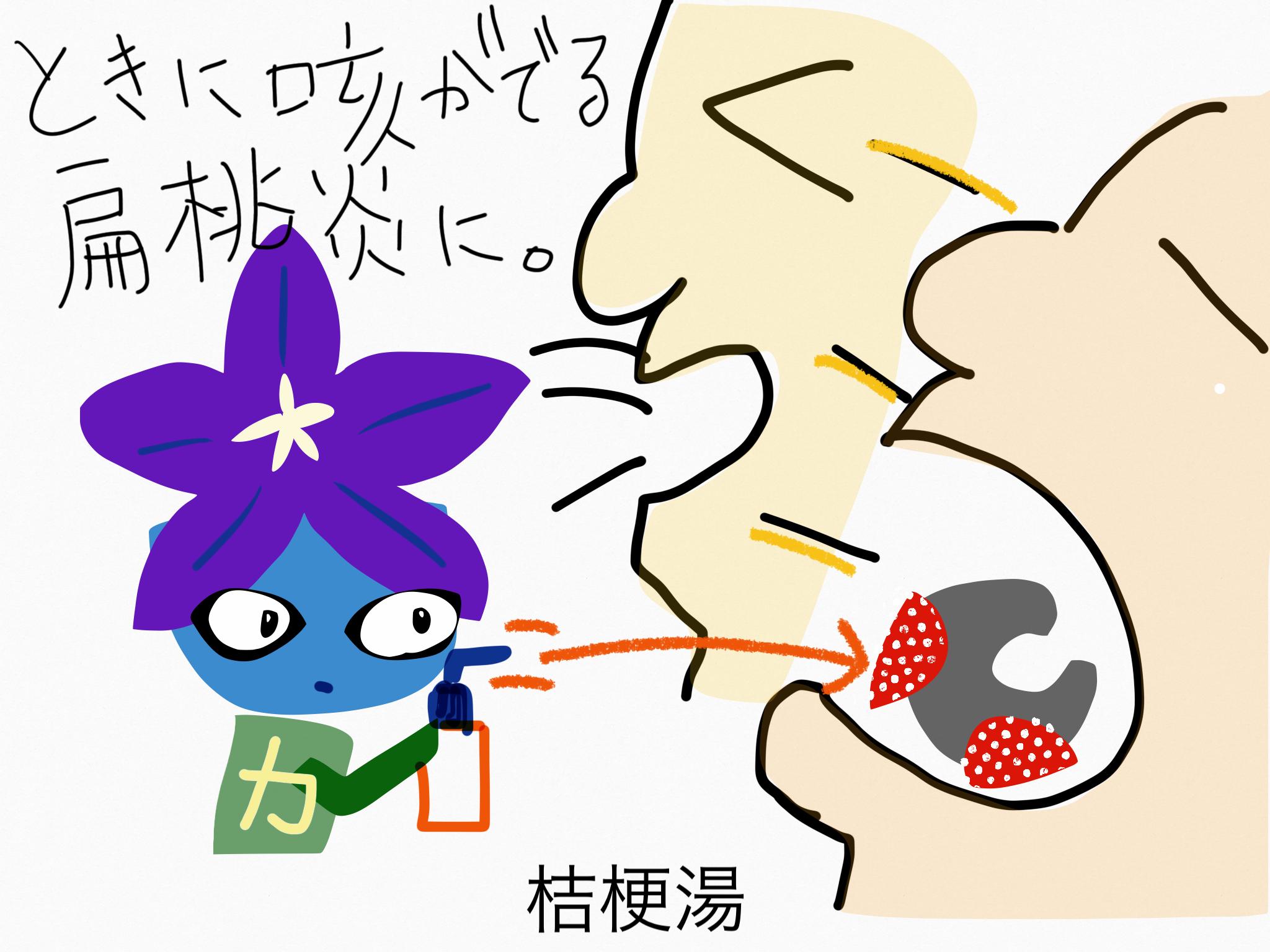 桔梗湯(ききょうとう)[のどの痛み]【漢方の覚え方】