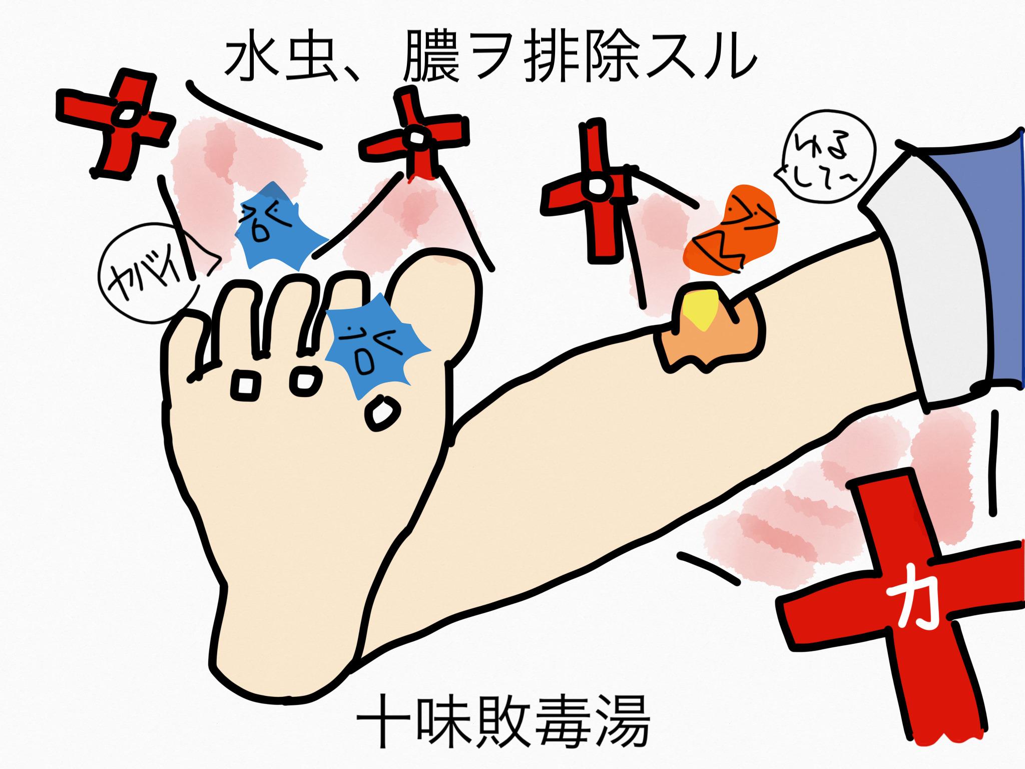 十味敗毒湯(じゅうみはいどくとう)[皮膚疾患]【漢方の覚え方】