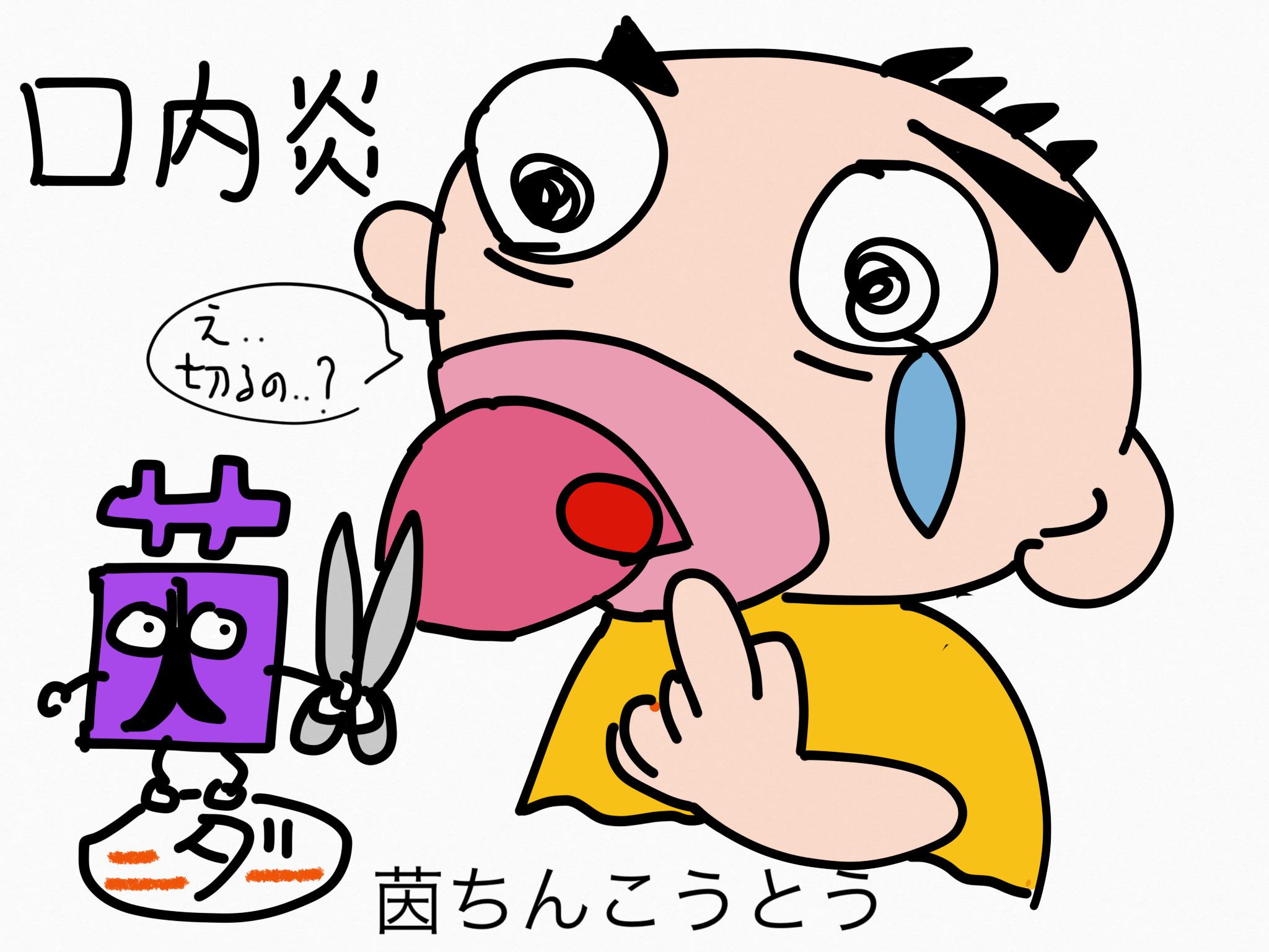 茵蔯蒿湯(いんちんこうとう)[口内炎、蕁麻疹]【漢方の覚え方】